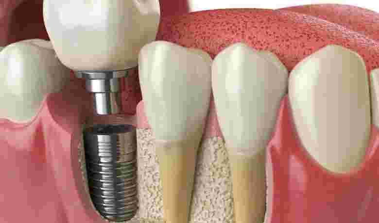 Implantología_22